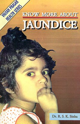 Know more about jaundice
